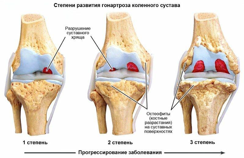 Чем лечить артрит артроз дома фото