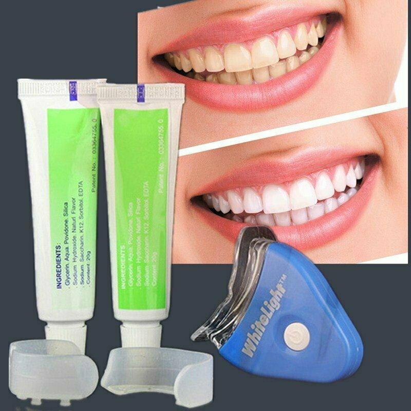 Отбеливание зубов White Light в Альметьевске