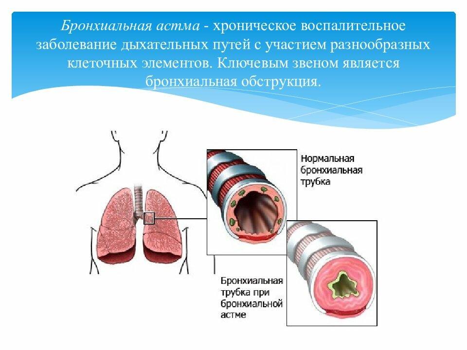 Pulmofix от заболеваний дыхательных путей в Балашихе