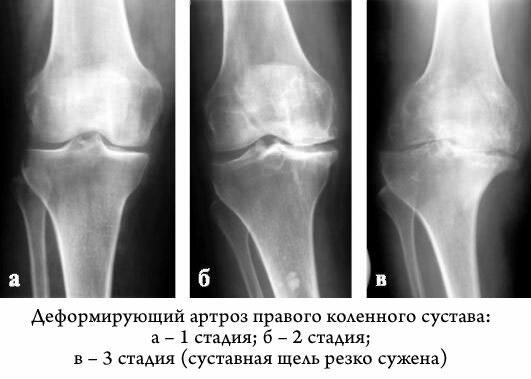 эксперт? остеохондроз коленного сустава степени лечение Вами согласен. этом