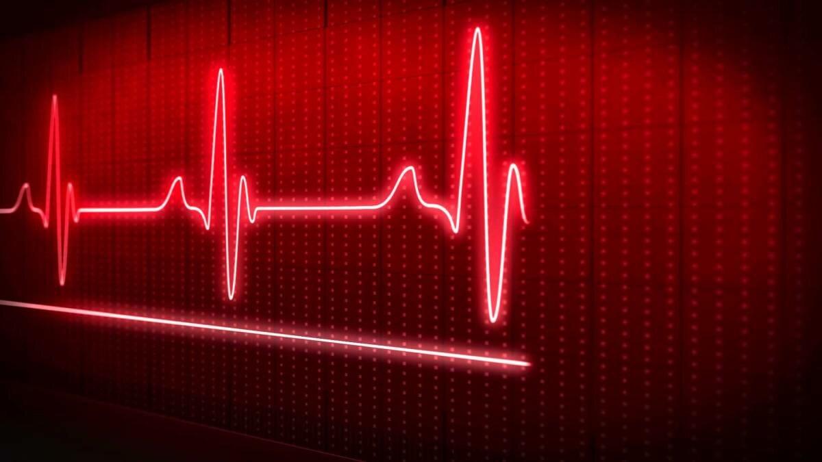изготовлению картинки ритм сердца на черном фоне этой модели