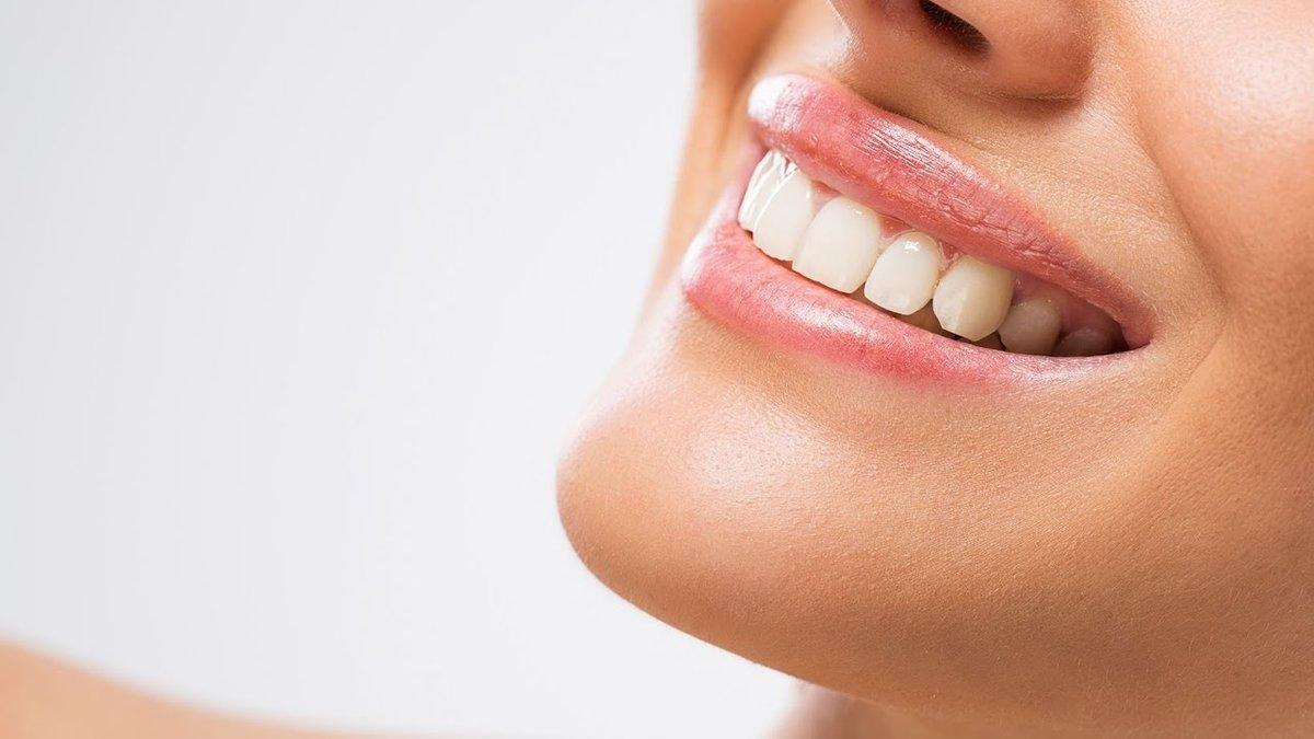картинка красивая улыбка с зубами причин лечением