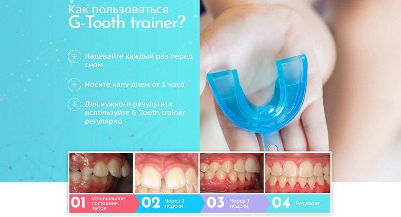 Капа Dental Trainer для выравнивания зубов в Отрадном. Капа  стоматологическая для выравнивания зубов Официальный сайт bb2d830d1ac