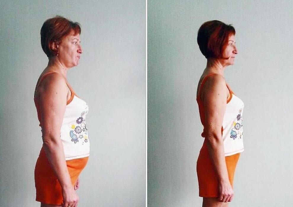 лишний вес при гипертиреозе