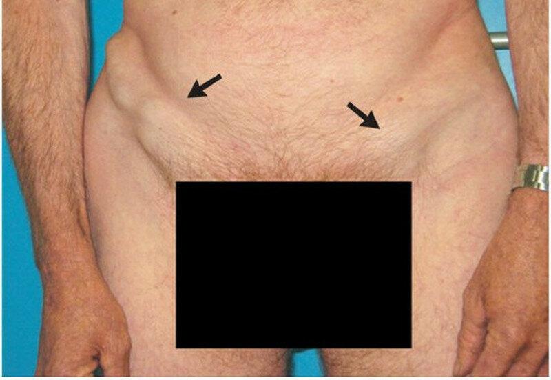 воспаление паховых лимфоузлов у мужчин при сифилисе