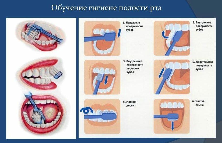 Картинки стоматологии по профилактике