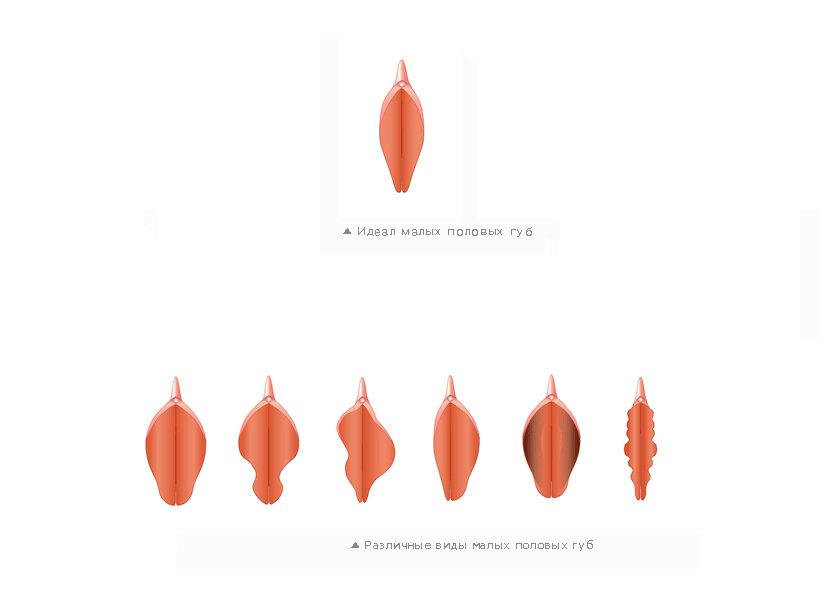 разновидность половых губ девушек - 10