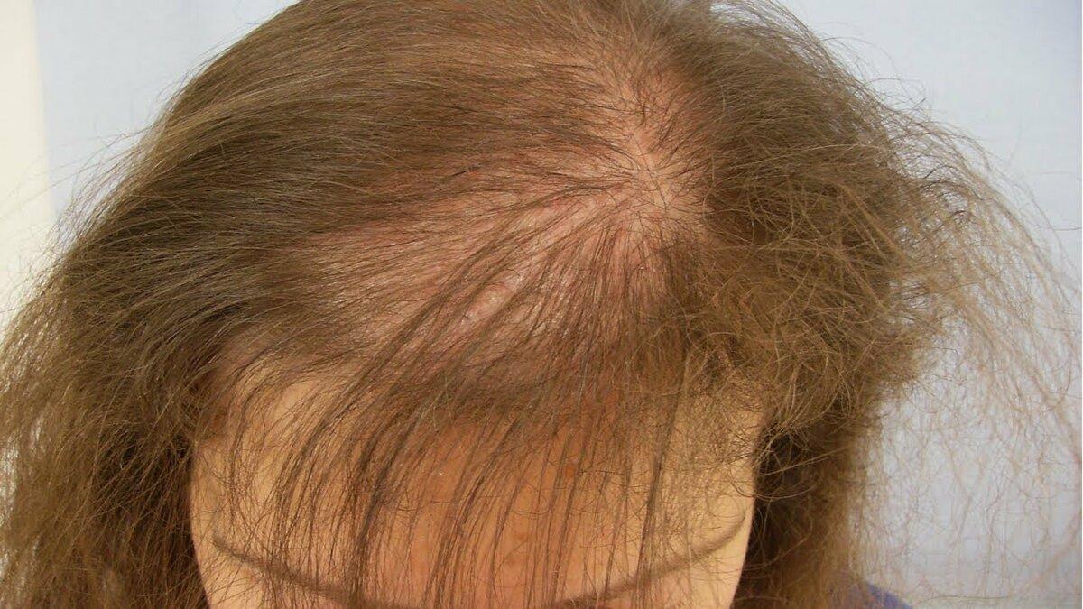 Рецепт за косу