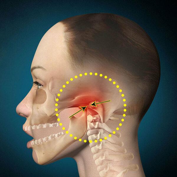 Лечения врожденный дисплазия тазобедренного сустава