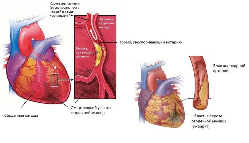 Картинки острый инфаркт миокарда