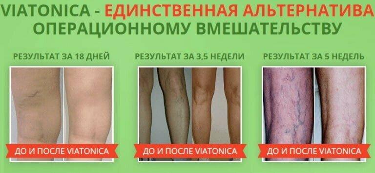 Viatonica от варикоза в Новочебоксарске
