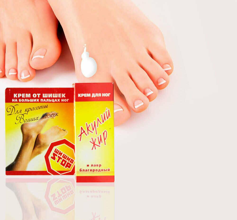 Шишка STOP крем от шишек на ноге в Нижнеудинске