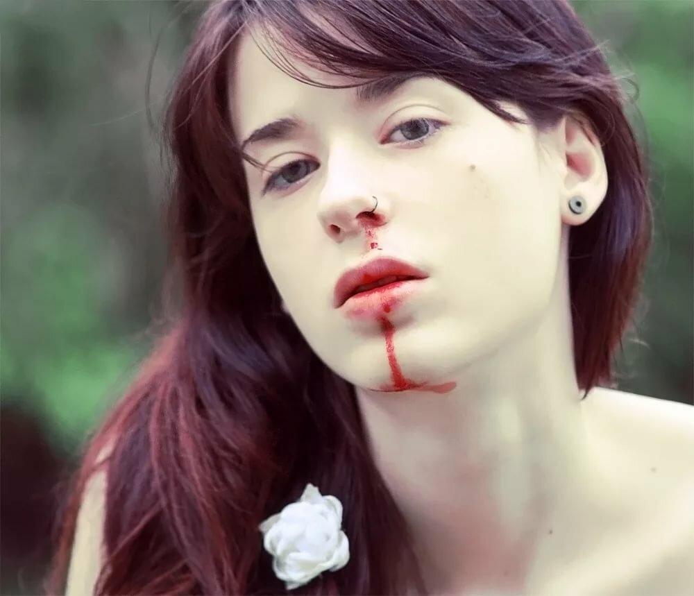 Картинки девушка с разбитым носом