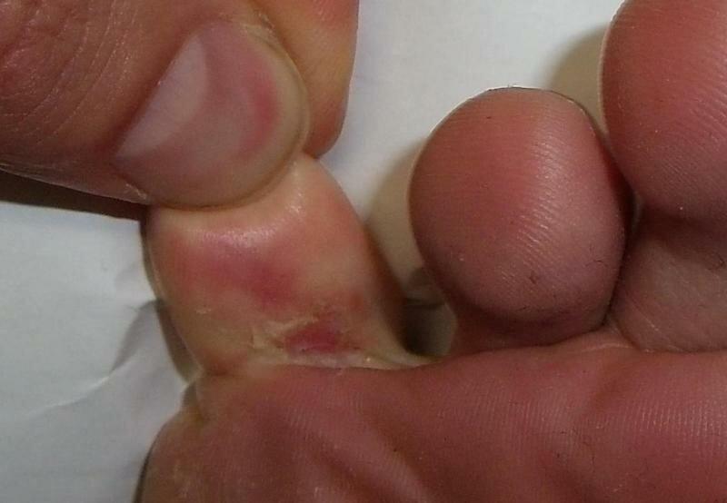 Видео опрелости между пальцев ног голых