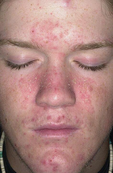Facial yeast dermatitis, desi naked star