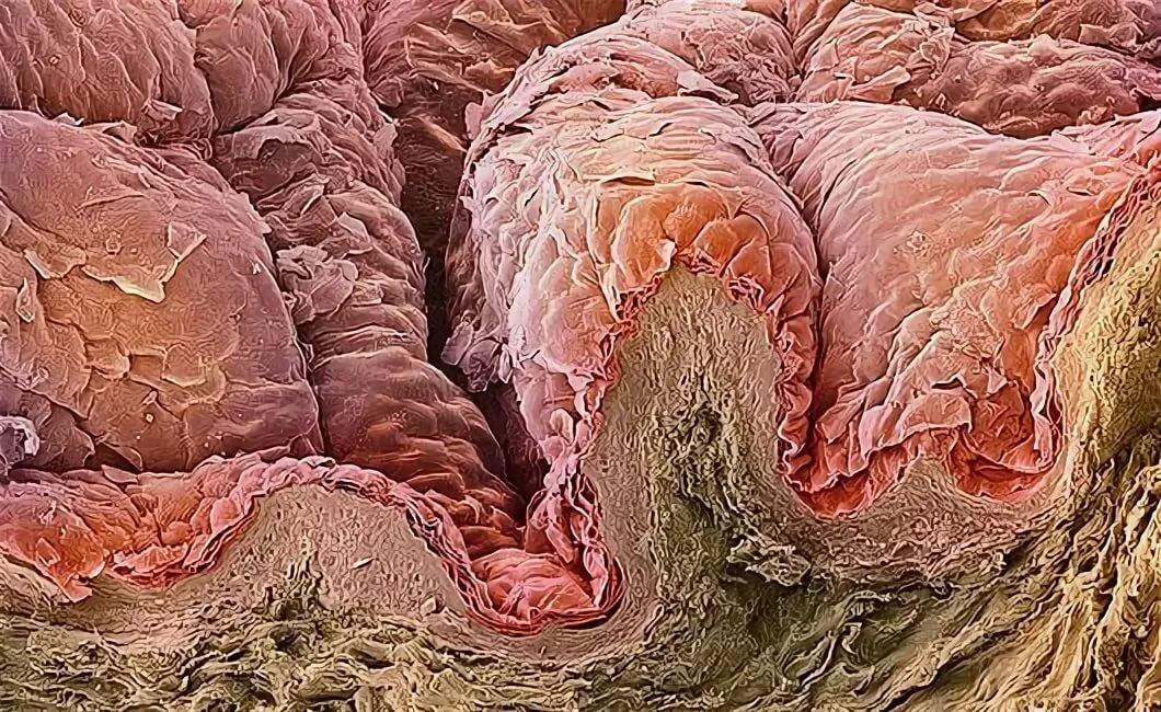 Хеликобактер пилори фото под микроскопом все