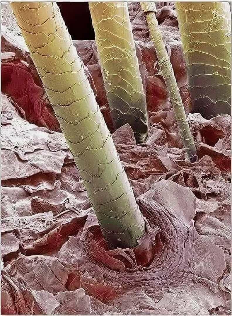Картинки кожи человека под микроскопом