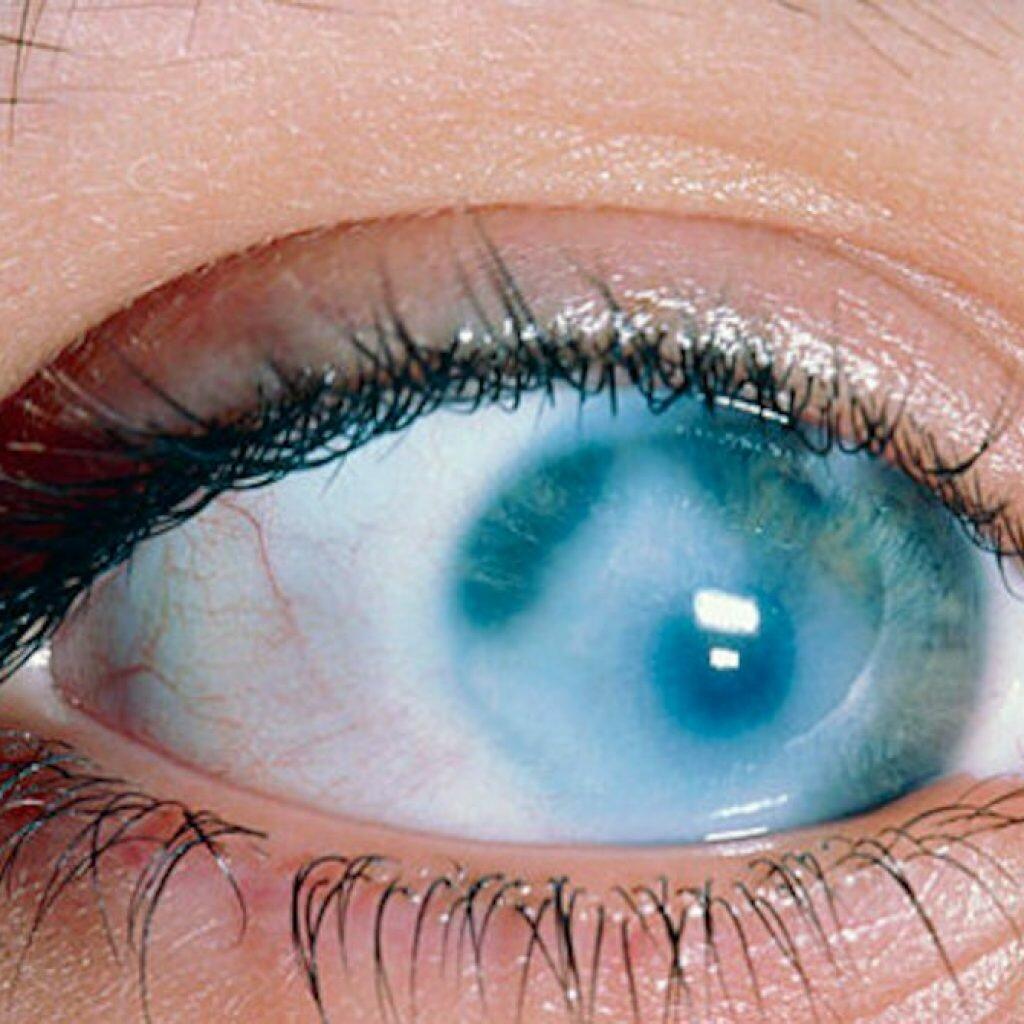 картинка мутный глаз рекламная ретушь ювелирной
