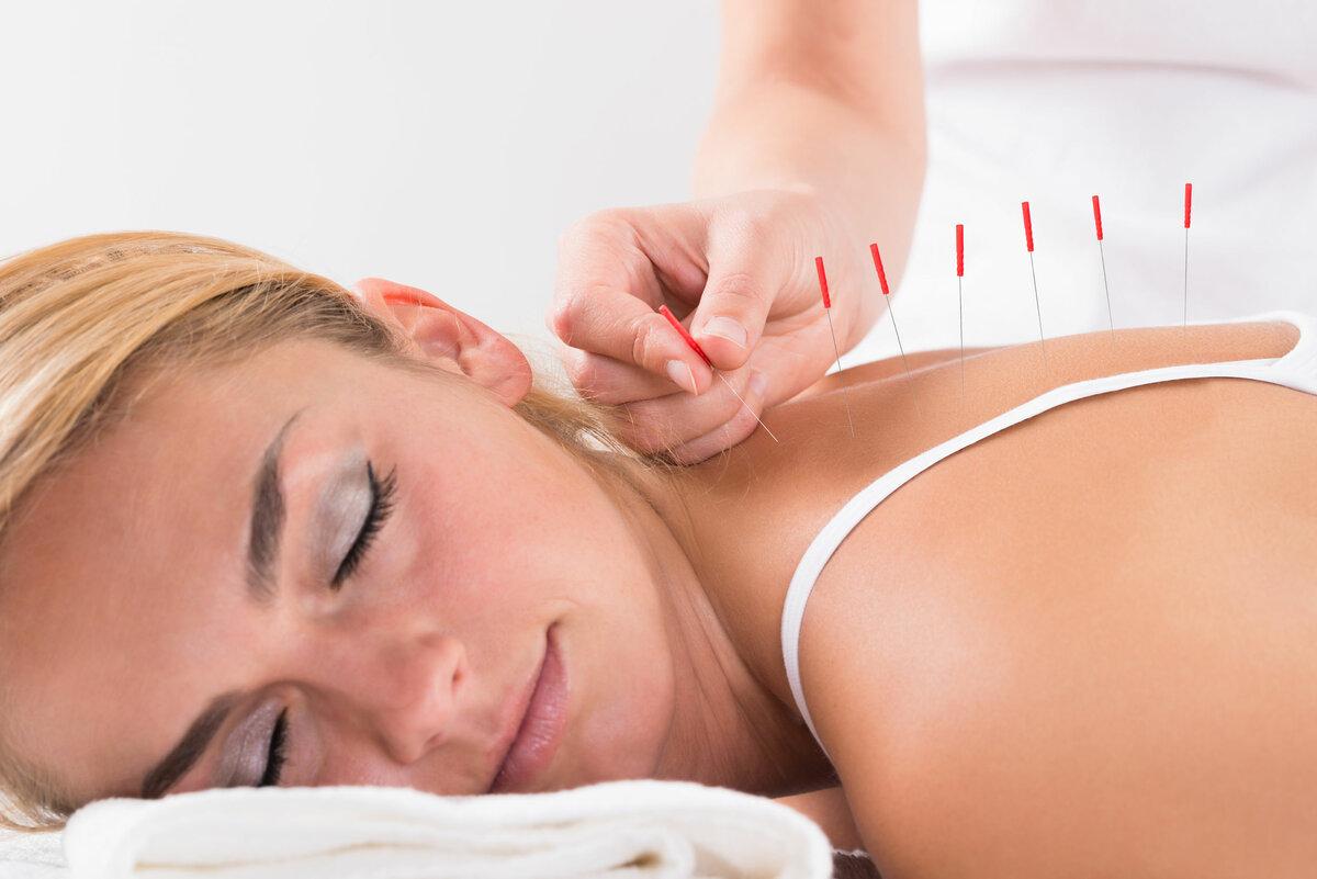 Способы Похудения Иглоукалывание. Как проводится иглоукалывание для похудения