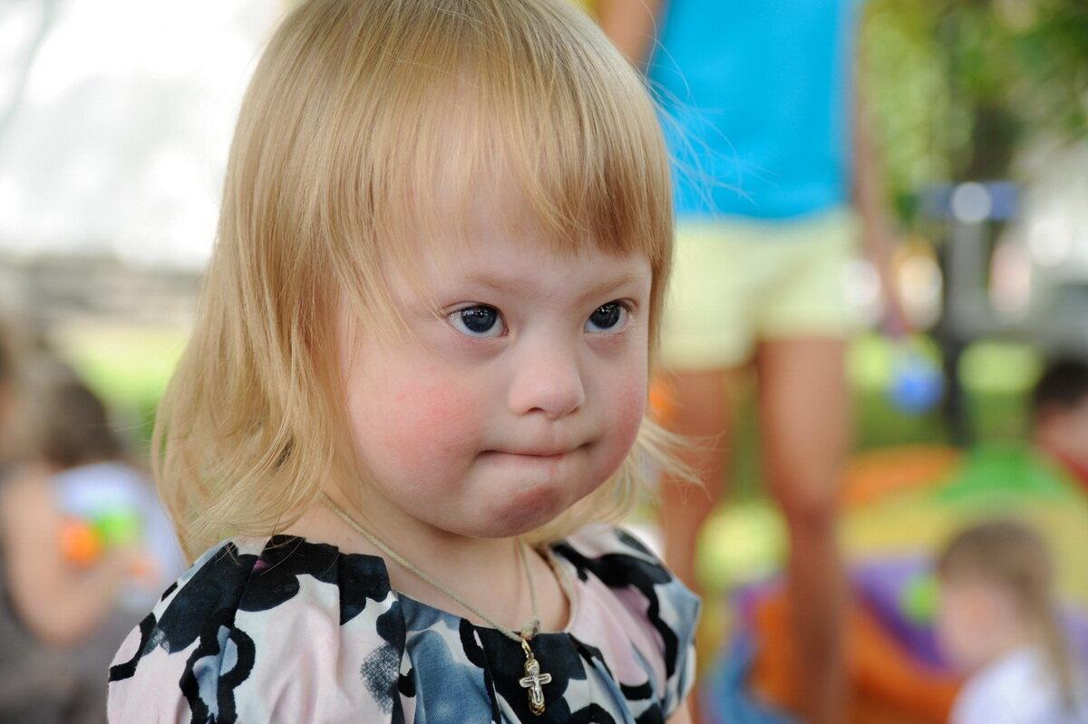 Фотографии детей даунов в легкой степени