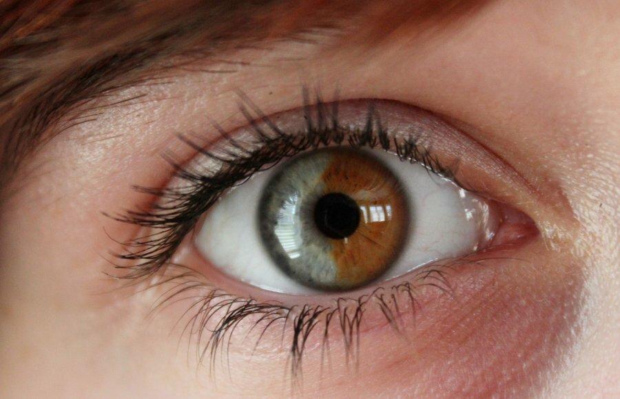 как принято, почему на фото глаза другого цвета антивирус