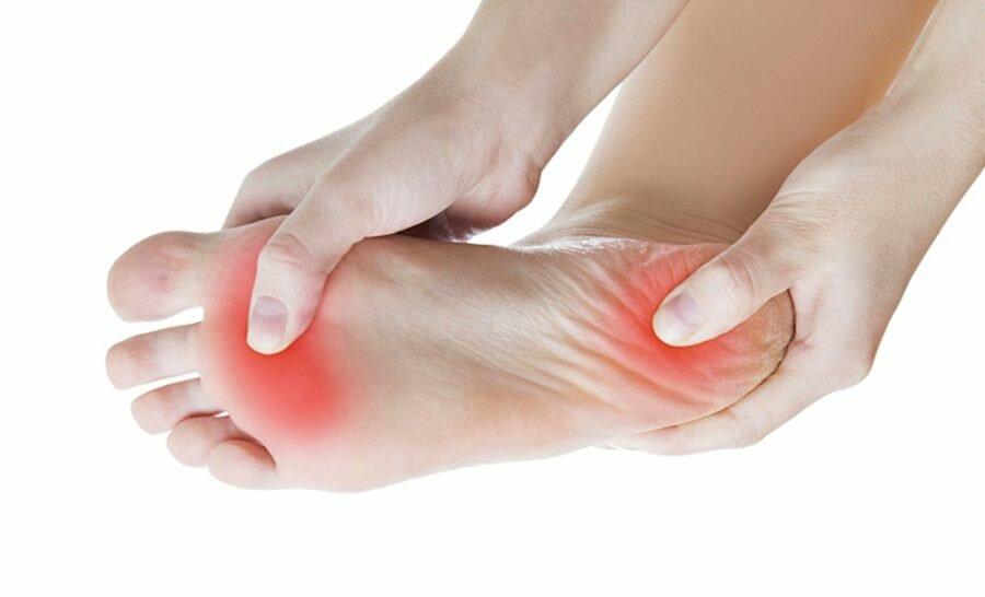 Грибок стопы – симптомы, эффективное лечение грибка стопы, список недорогих препаратов