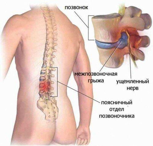 Лечение остеохондроза сколиоза форум