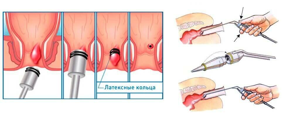 Геморрой Оперативное Лечение И Диета. Лечение геморроя оперативным методом