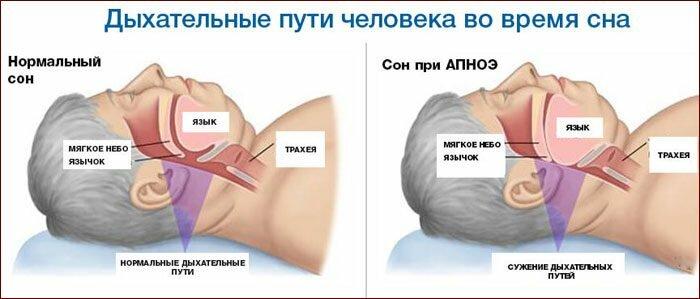 Попадание пищи в дыхательные пути во время сна