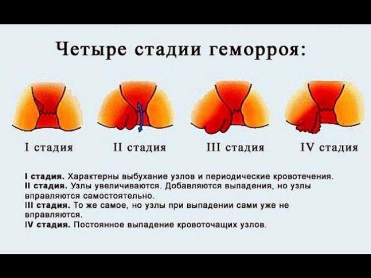 лечение геморроя 3 4 степени