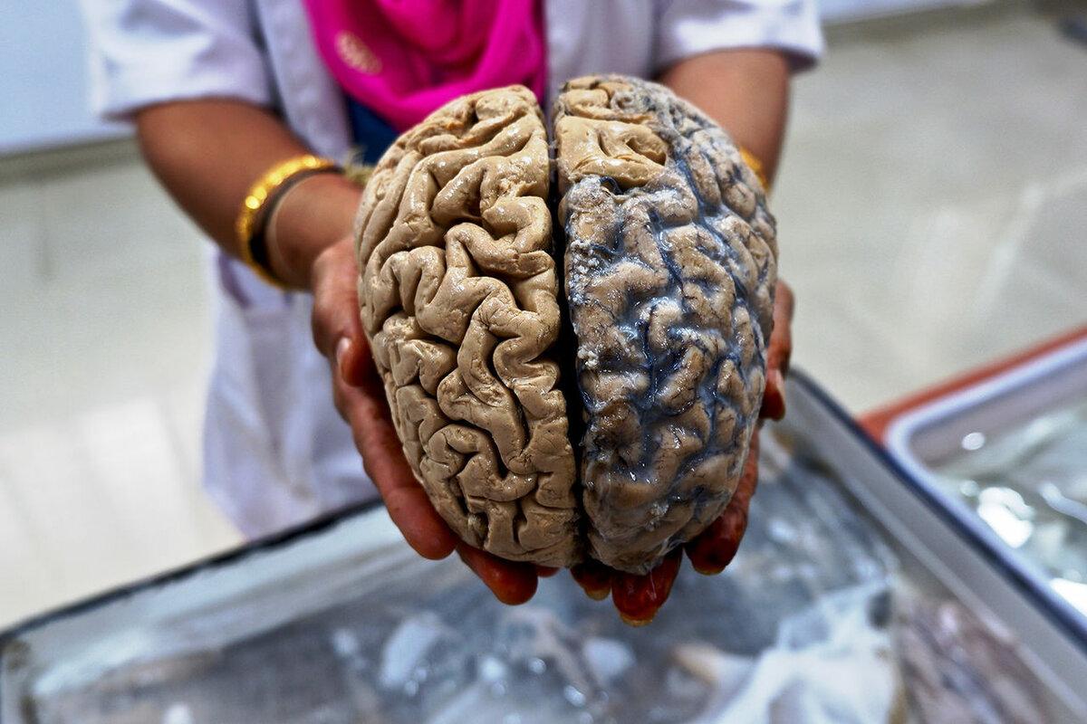 людей, картинка мозги в руке меню