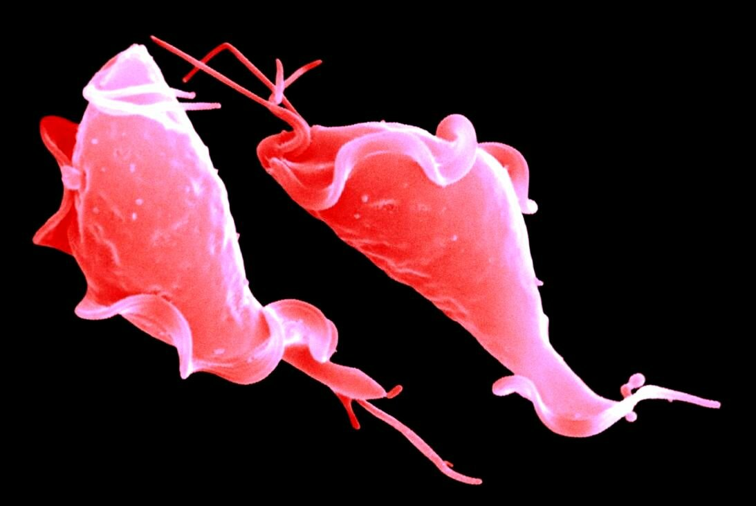 лейкоциты в мазке: участие половых инфекций