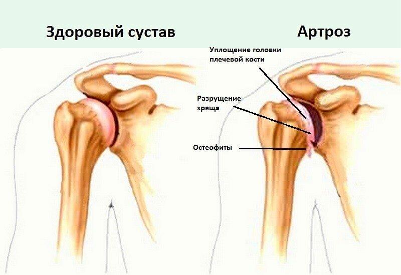 Артрит в плечевом суставе лечение фото