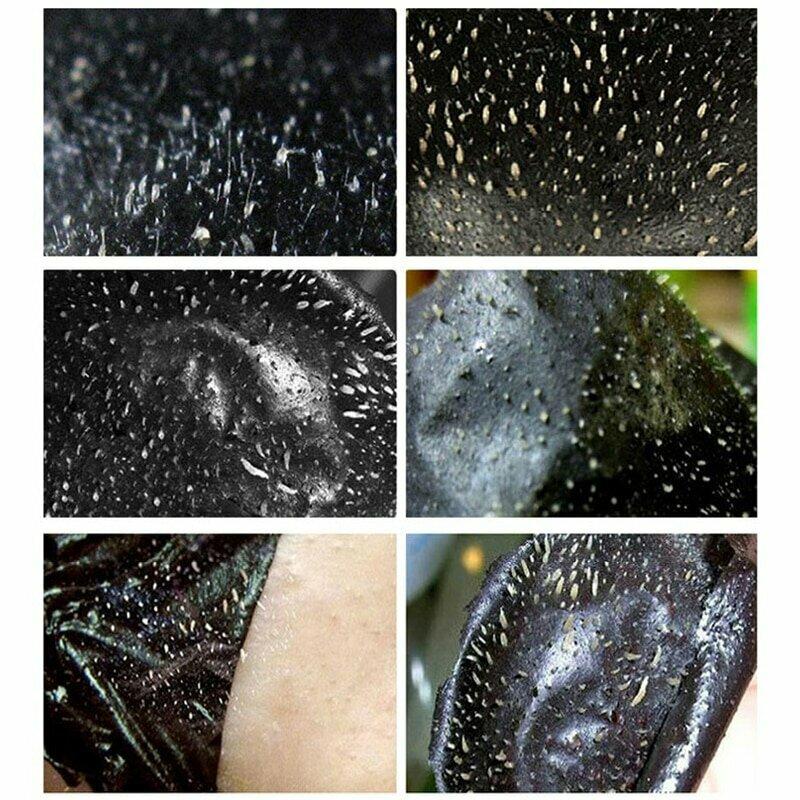 маска от черных точек картинки удалось запечатлеть