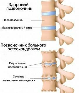 Лечение прибором орион артрозов