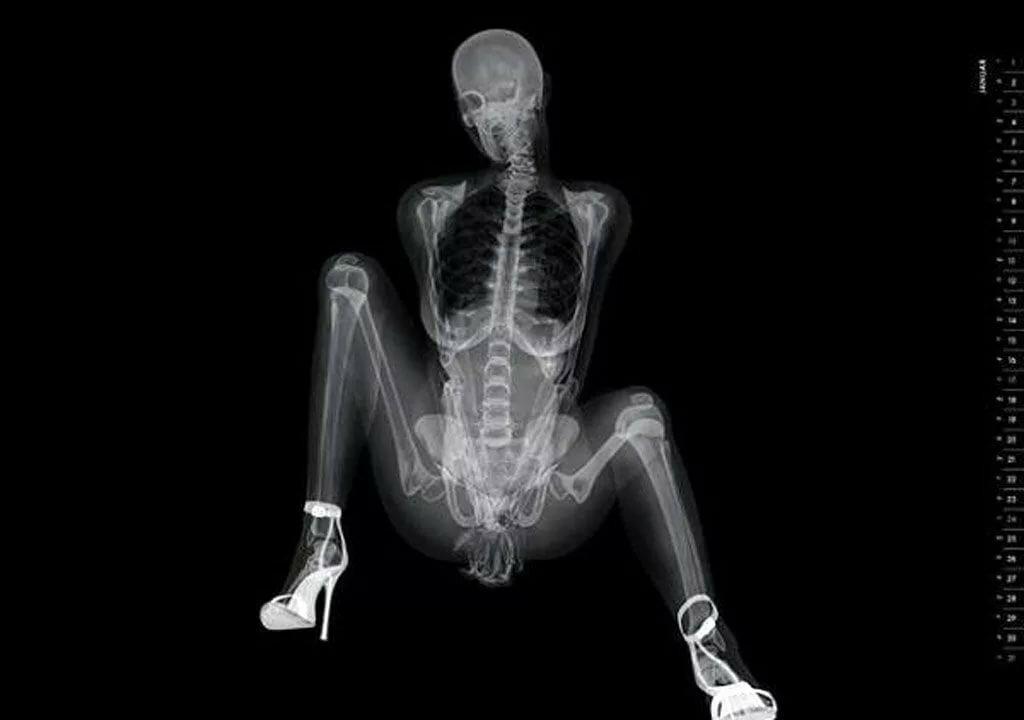 rentgen-snimok-kak-chlen-v-anal