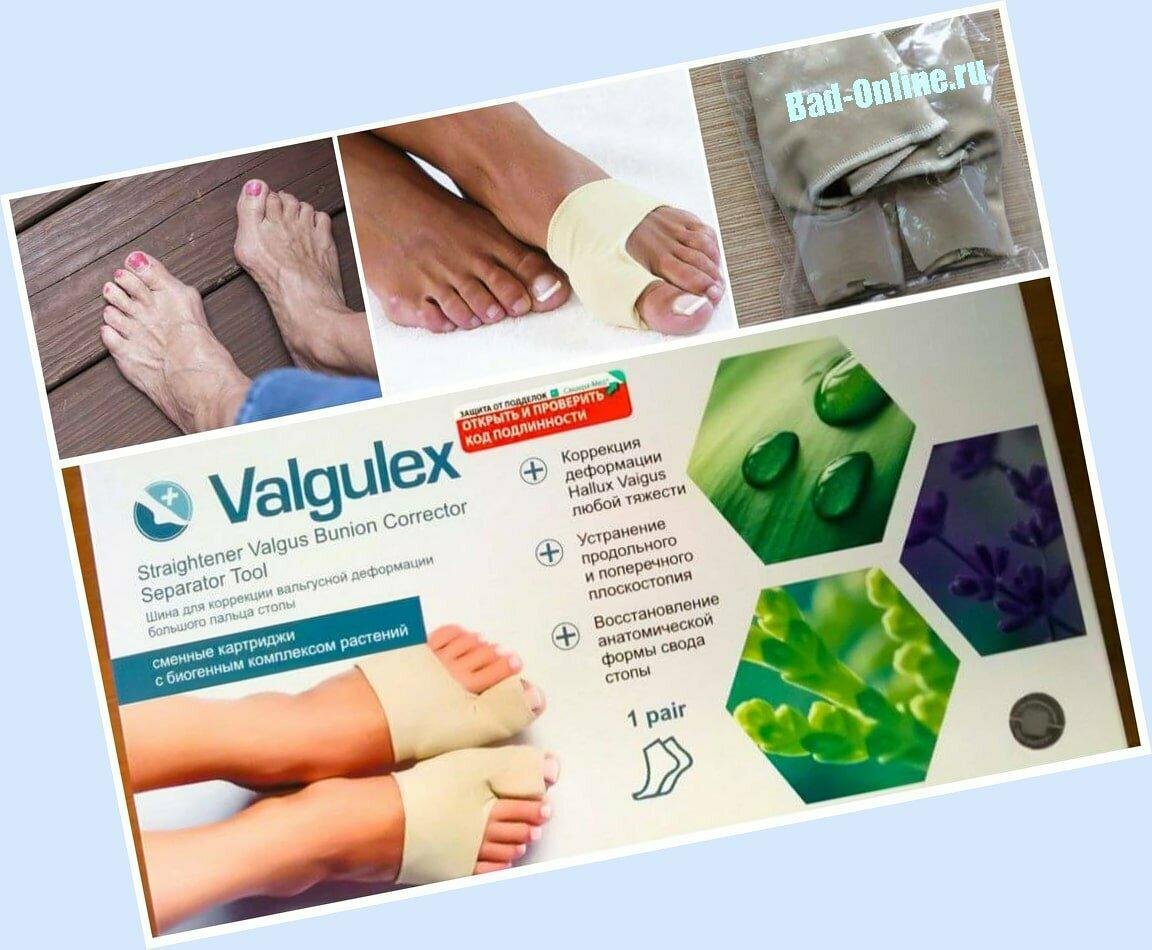 Valgulex от вальгусной деформации в Кривом Роге