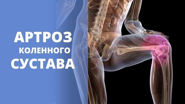 Чем и как лечить артроз артрит