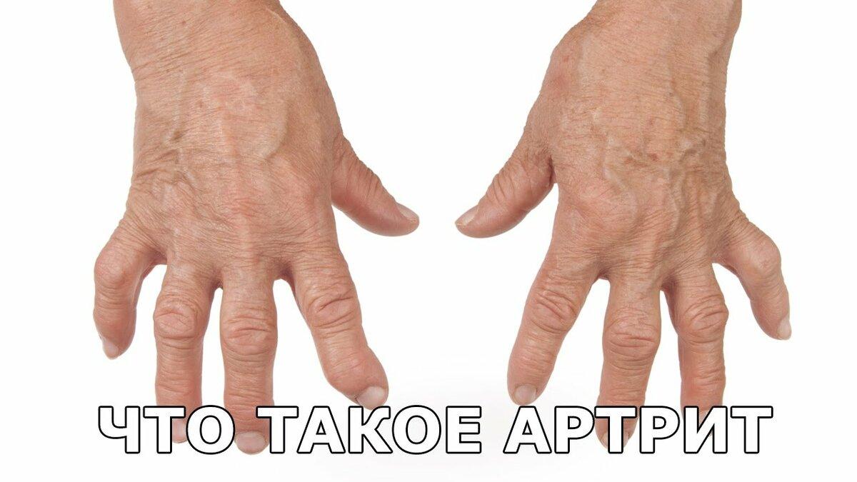 Как живете с ревматоидным артритом страница 58 фото