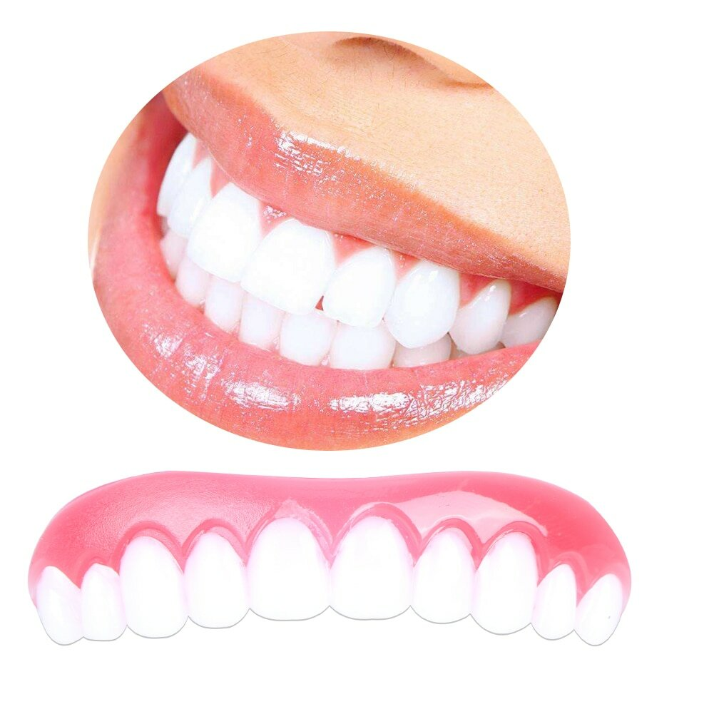 Perfect Smile Veneers в Макеевке