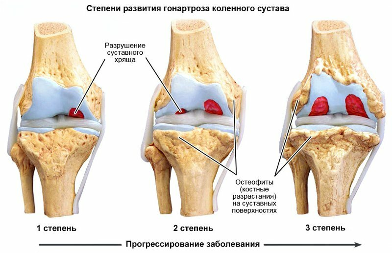 Как лечить деформирующий артрит коленного сустава фото