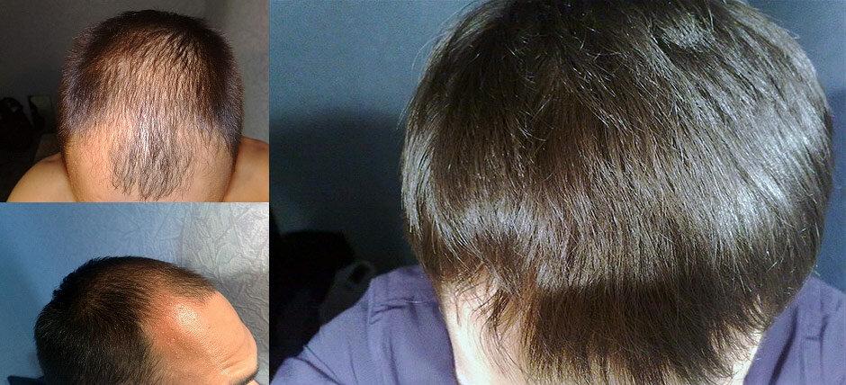 Генеролон фото до и после