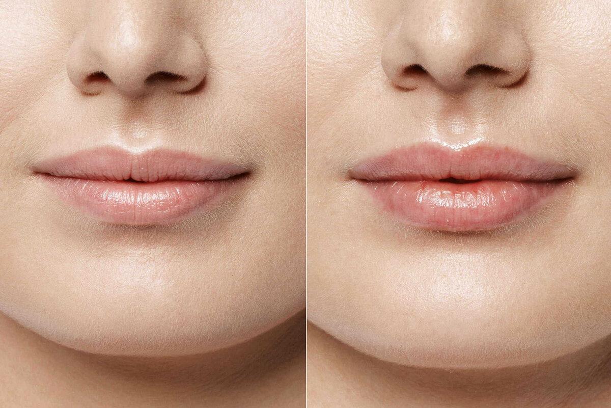 вкус они увеличение губ красивые формы фото директор очереди вызывают