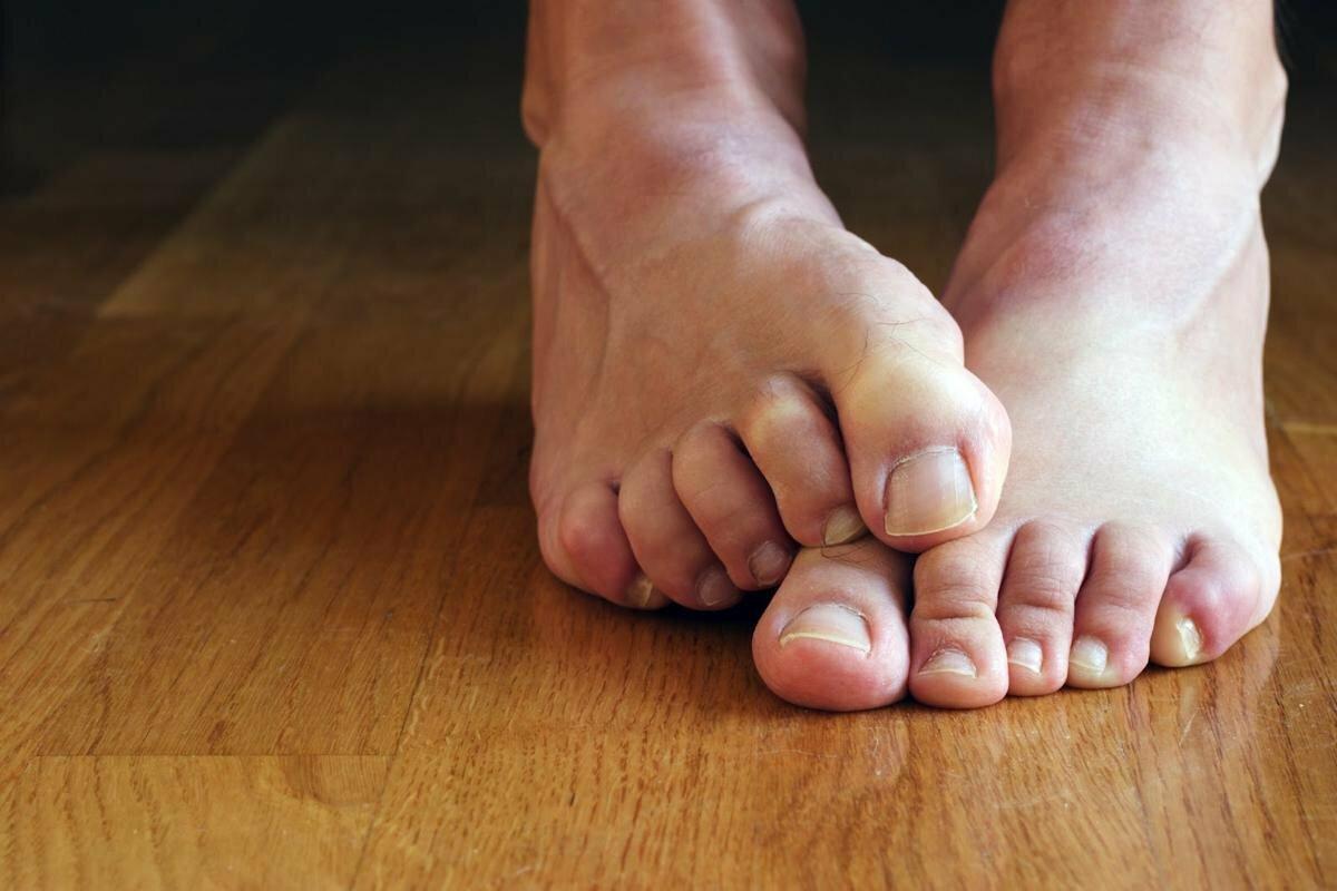 царевны королевич стопа и пальцы ног картинки кого бюджет путешествия