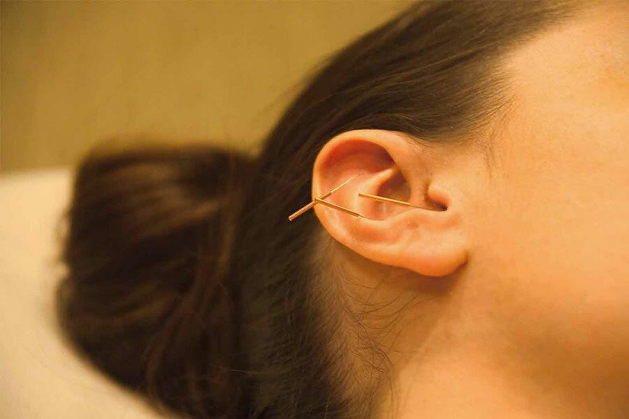 Иглоукалывание В Уши Для Похудения Отзывы. Иглоукалывание для похудения: методики и отзывы