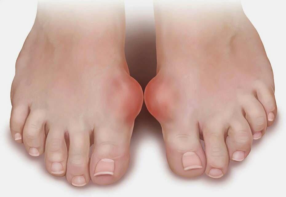 Шишки на ступнях при артрите фото