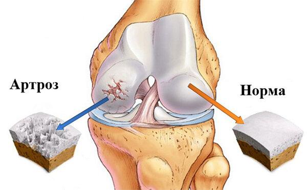 Артрит большого пальца стопы симптомы и лечение