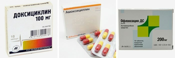 Антибиотики при артрите тазобедренного сустава фото