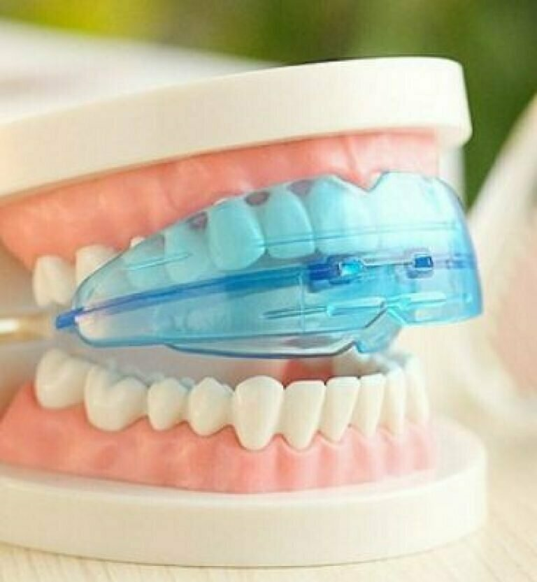 G-TOOTH TRAINER для выпрямления зубов в Междуреченске
