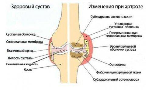 кажется медикаментозное лечение артроза суставов ошибках учатся